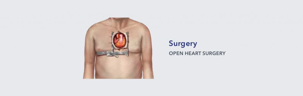 Surgical Aortic Valve Replacement (SAVR)