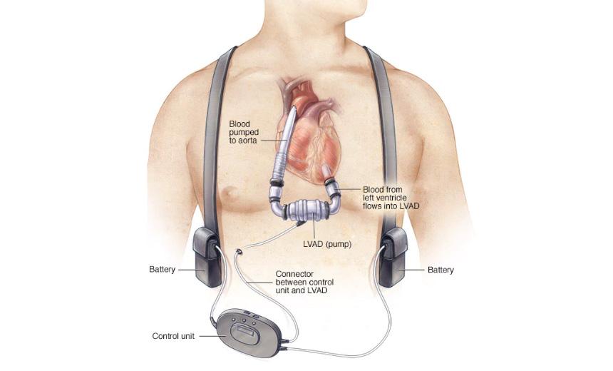 Left Ventricular Assist Device Patients
