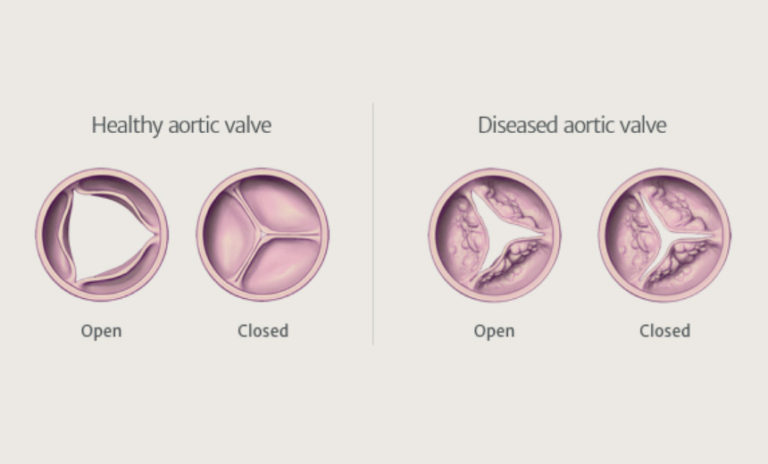 NewHeartValve: An all-encompassing resource for patients with aortic stenosis