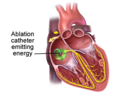 Atrial Flutter Ablation Diagram