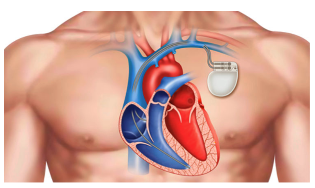 Permanent Pacemaker Implant Procedure Diagram