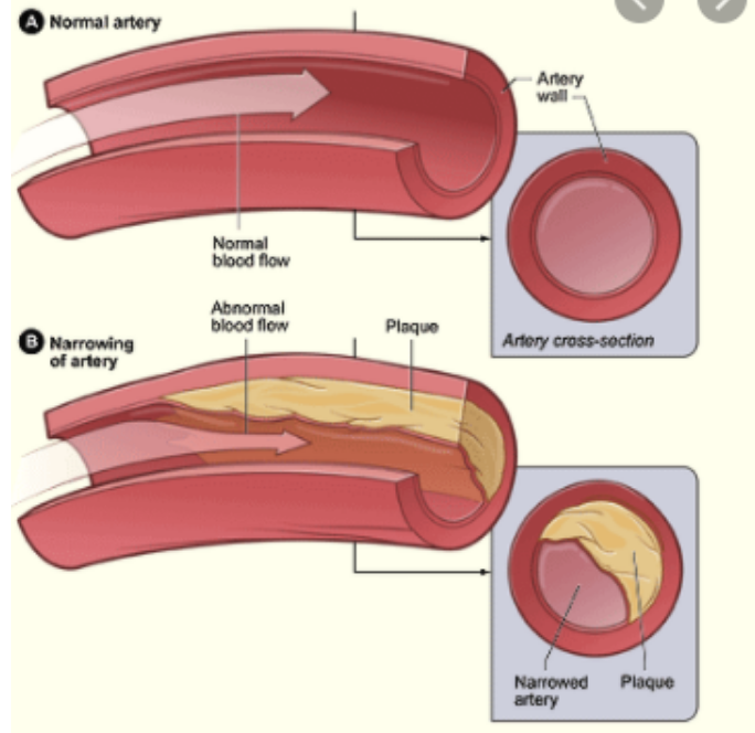 Cholesterol in Arteries