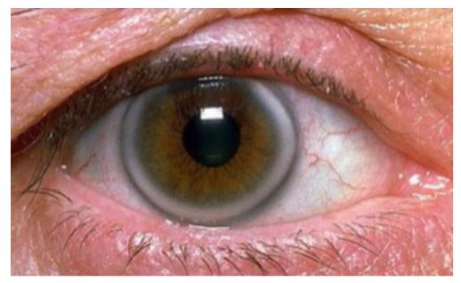 Premature Arcus Senilis, Diagnosis of Hyperlipidaemia