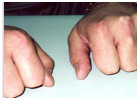 Tendon Xanthomata, Diagnosis of Hyperlipidaemia